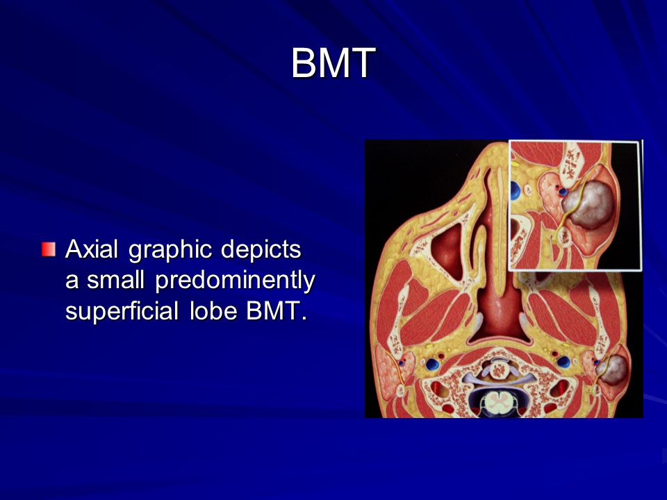 BMT Axial graphic depicts a small predominently superficial lobe BMT.