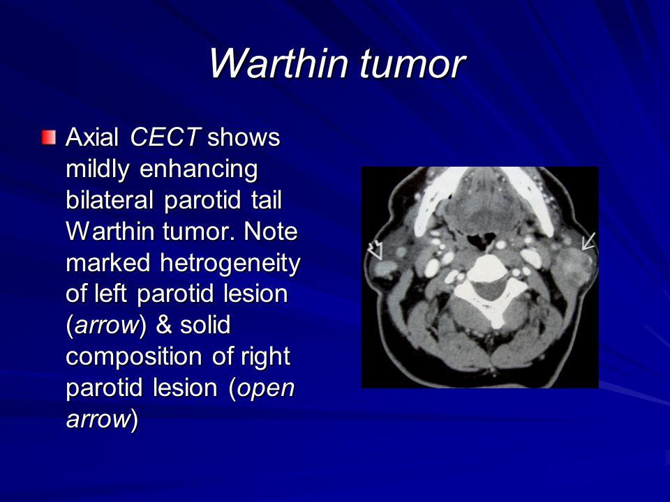 Warthin tumor