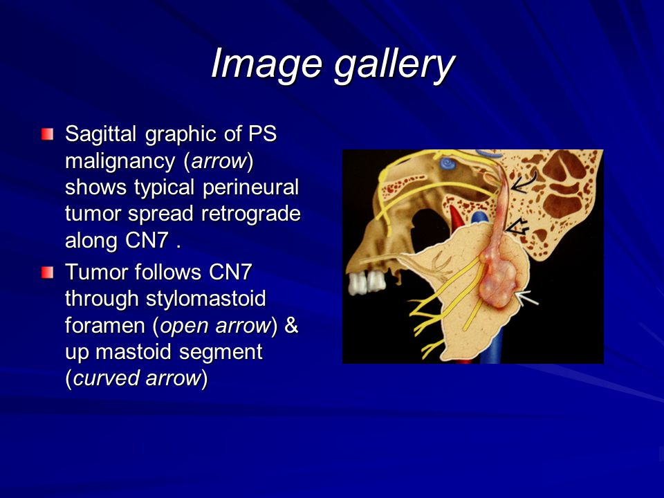 Image gallery Sagittal graphic of PS malignancy (arrow) shows typical perineural tumor spread retrograde along CN7 .