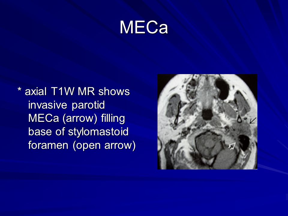 MECa * axial T1W MR shows invasive parotid MECa (arrow) filling base of stylomastoid foramen (open arrow)