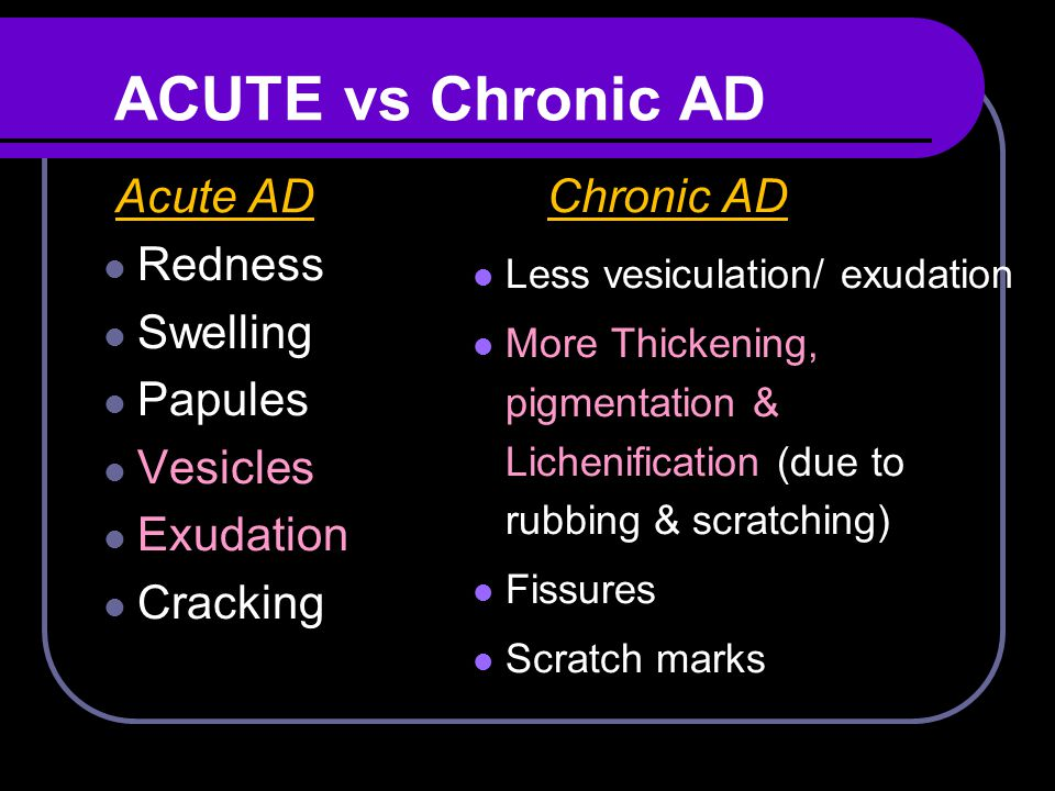 ACUTE vs Chronic AD Acute AD Chronic AD Redness Swelling Papules