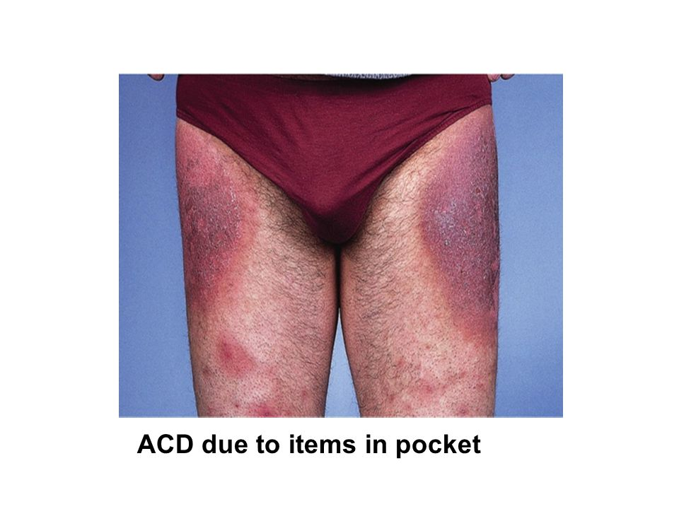 ACD due to items in pocket