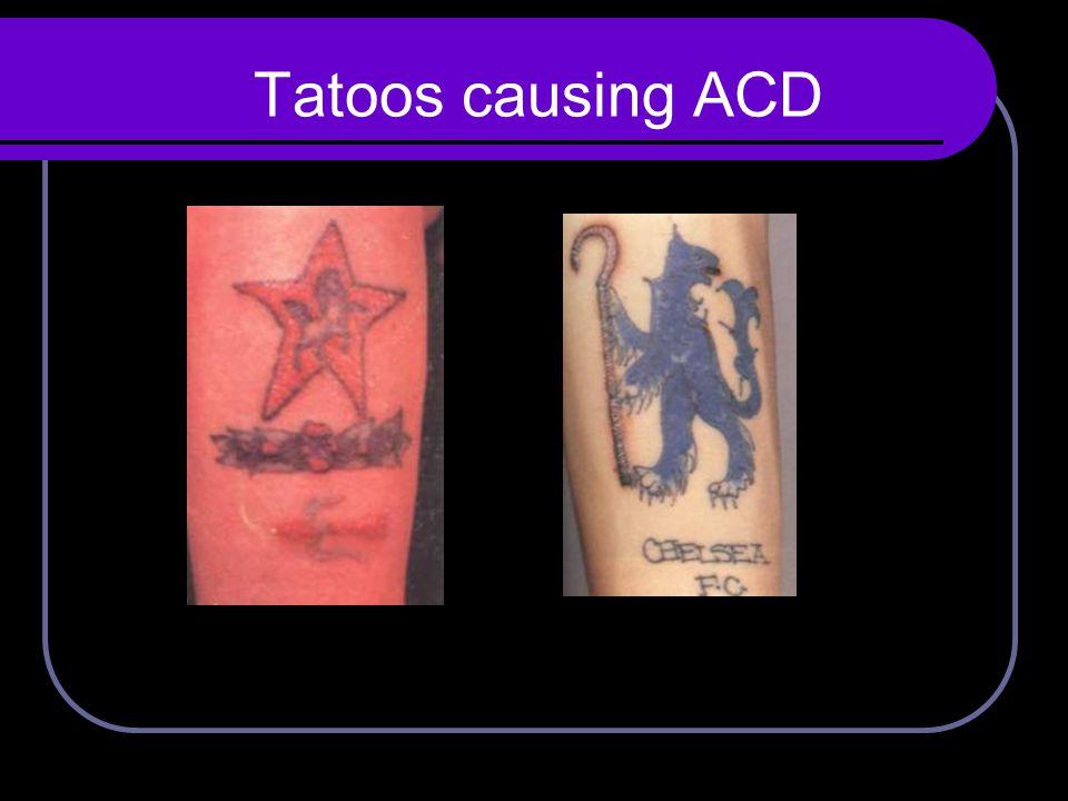 Tatoos causing ACD
