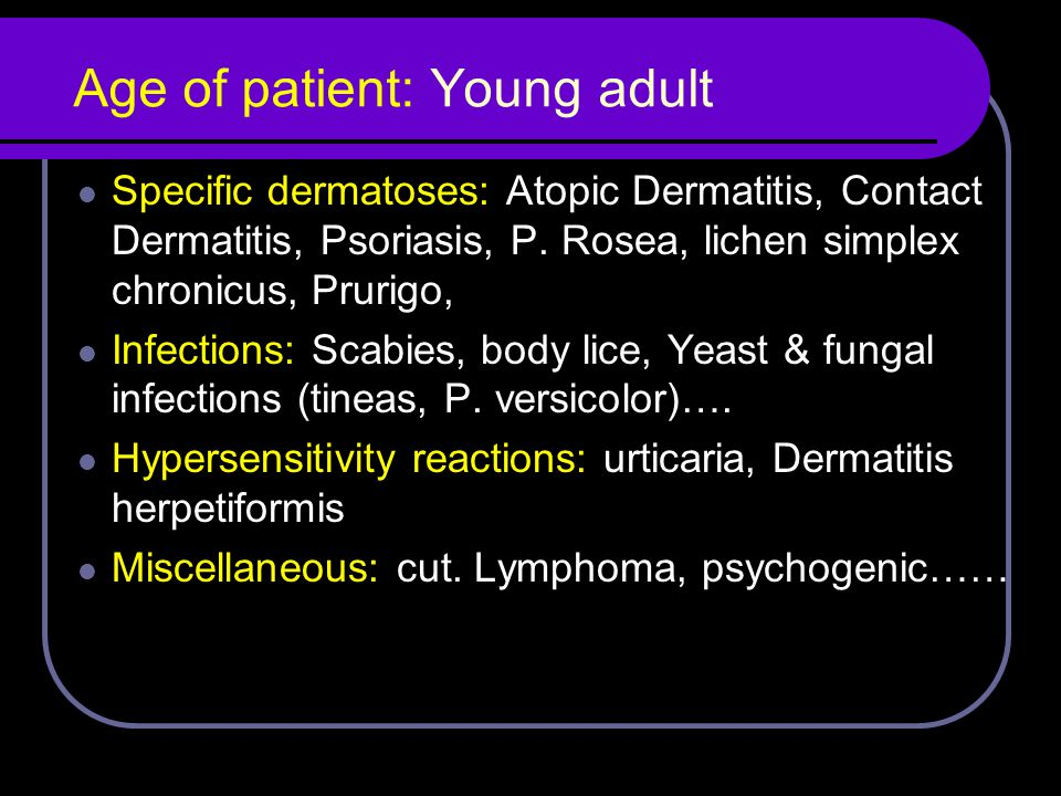 Age of patient: Young adult