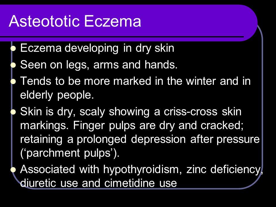 Asteototic Eczema Eczema developing in dry skin