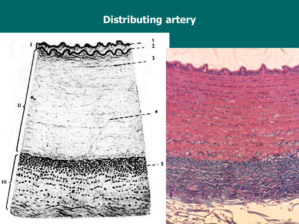 Distributing artery