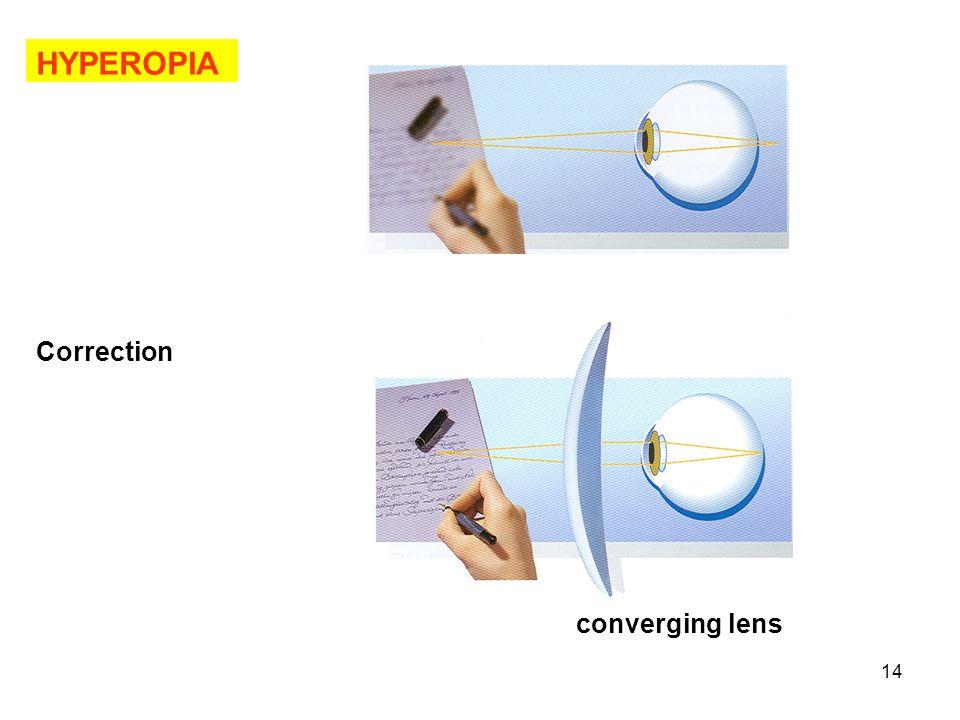 HYPEROPIA Correction converging lens