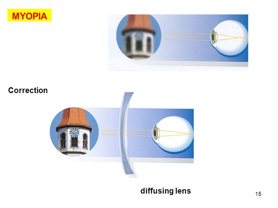 MYOPIA Correction diffusing lens