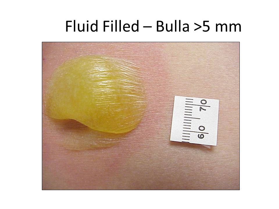 Fluid Filled – Bulla >5 mm