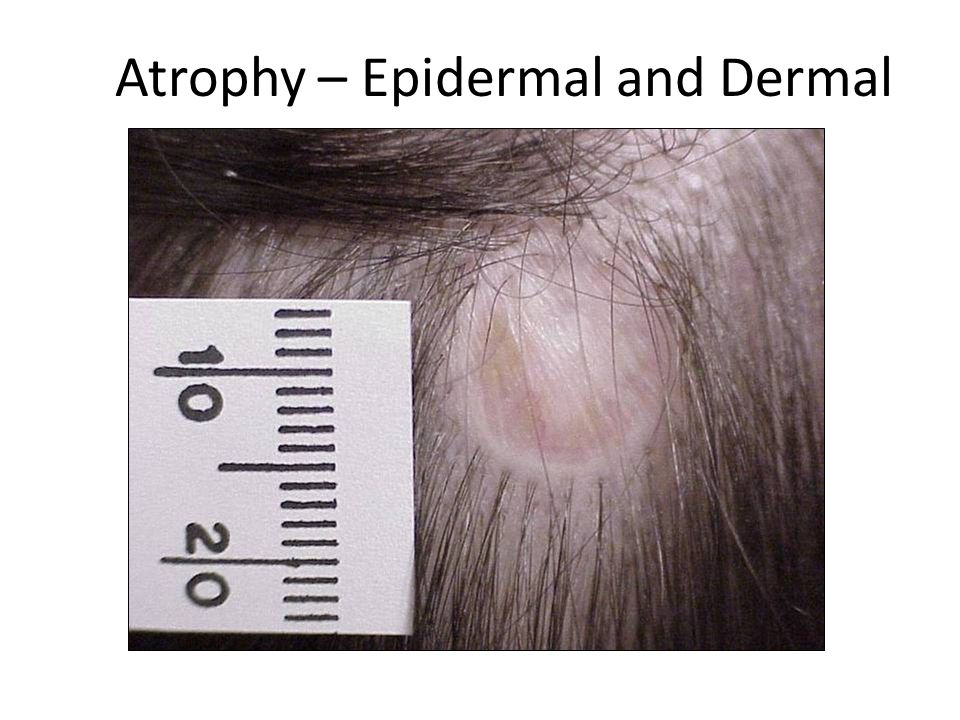 Atrophy – Epidermal and Dermal