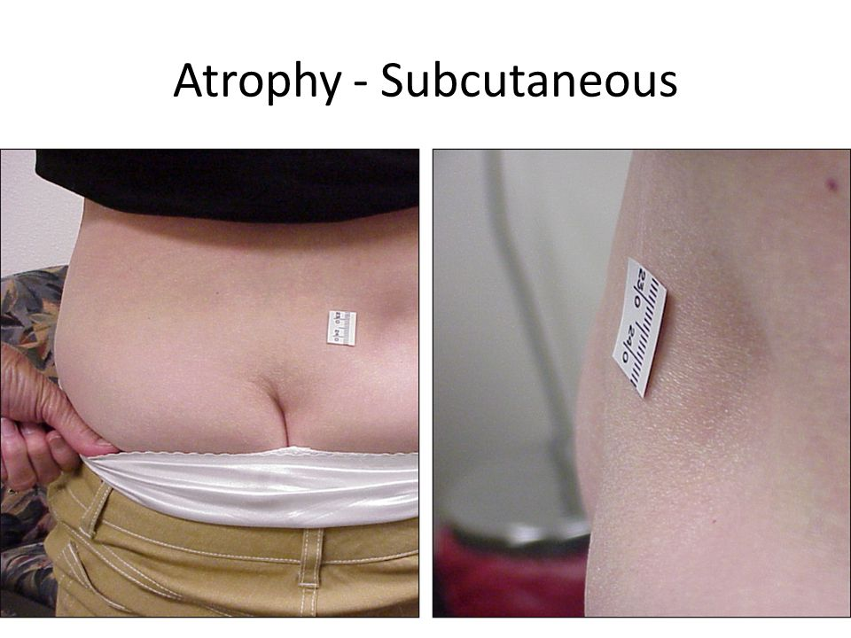 Atrophy - Subcutaneous