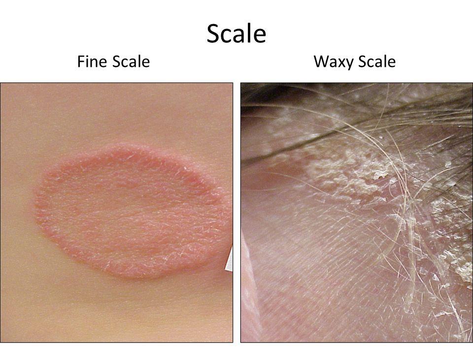 Scale Fine Scale Waxy Scale