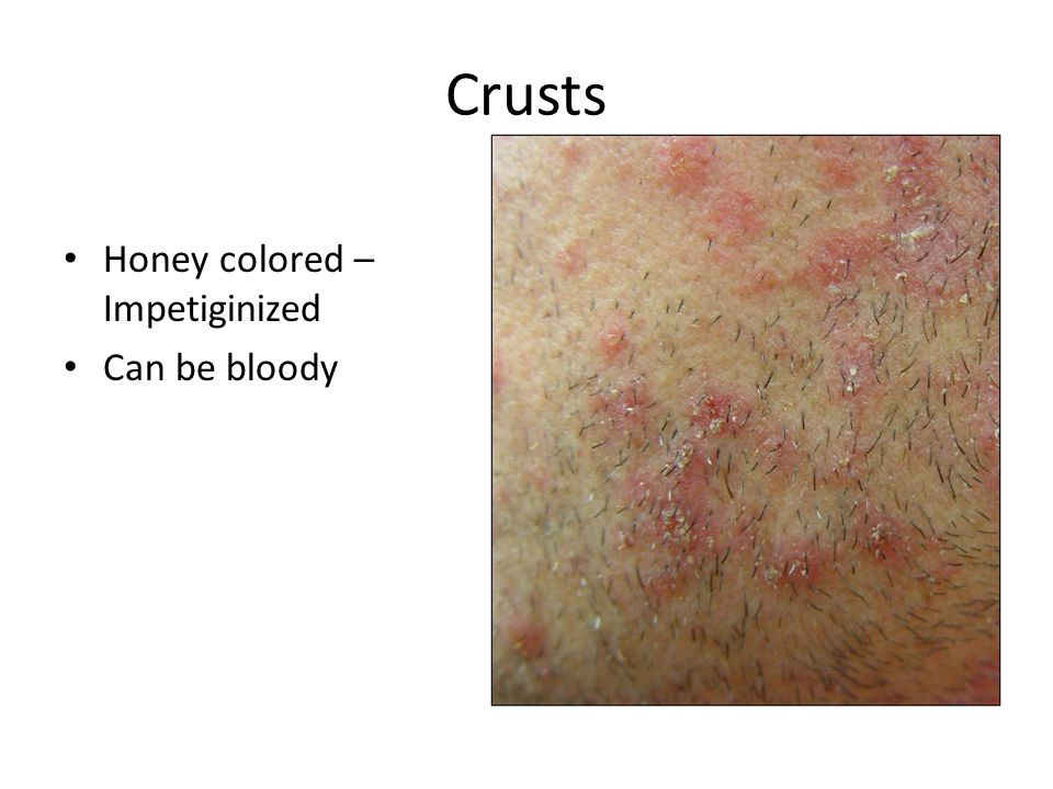 Crusts Honey colored – Impetiginized Can be bloody