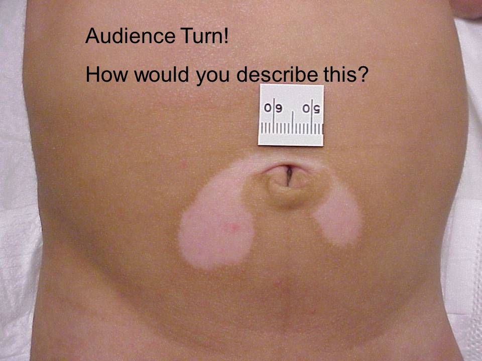 Audience Turn! How would you describe this