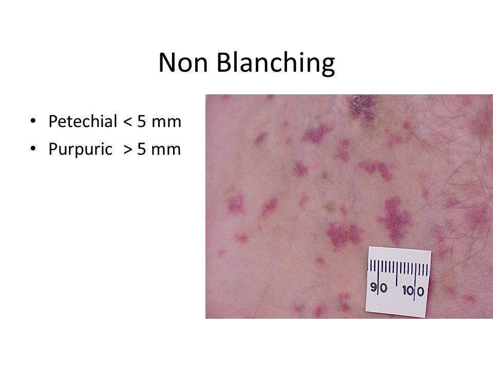 Non Blanching Petechial < 5 mm Purpuric > 5 mm