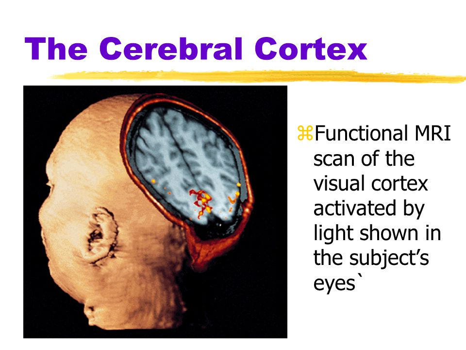 The Cerebral Cortex Functional MRI scan of the visual cortex activated by light shown in the subject's eyes`