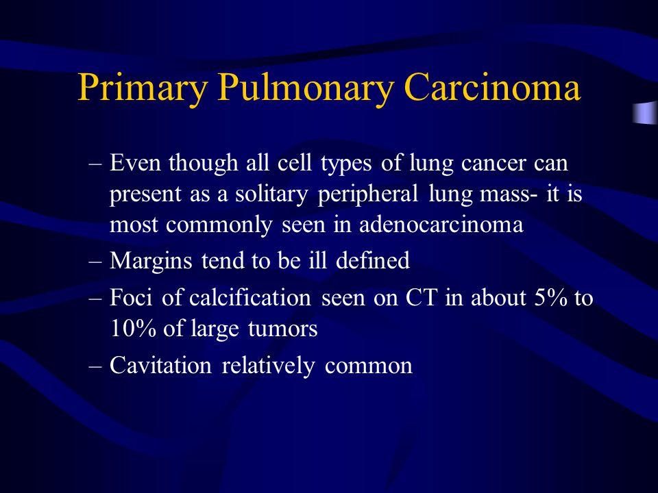 Primary Pulmonary Carcinoma