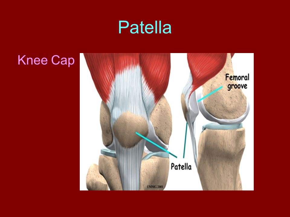Patella Knee Cap