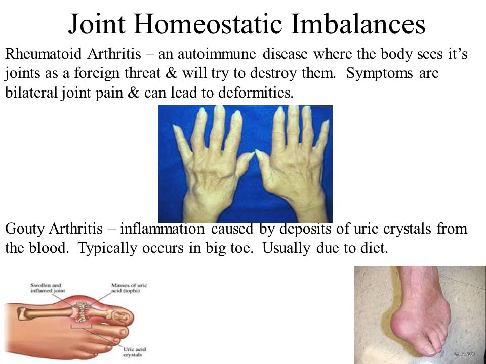 Joint Homeostatic Imbalances