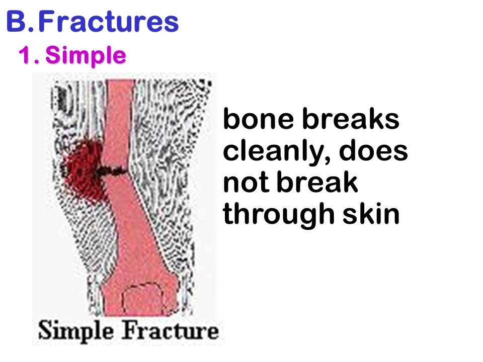 bone breaks cleanly, does not break through skin