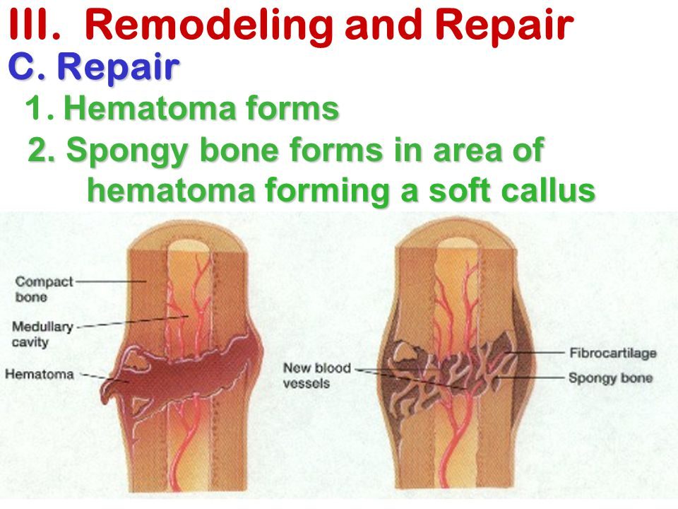 III. Remodeling and Repair