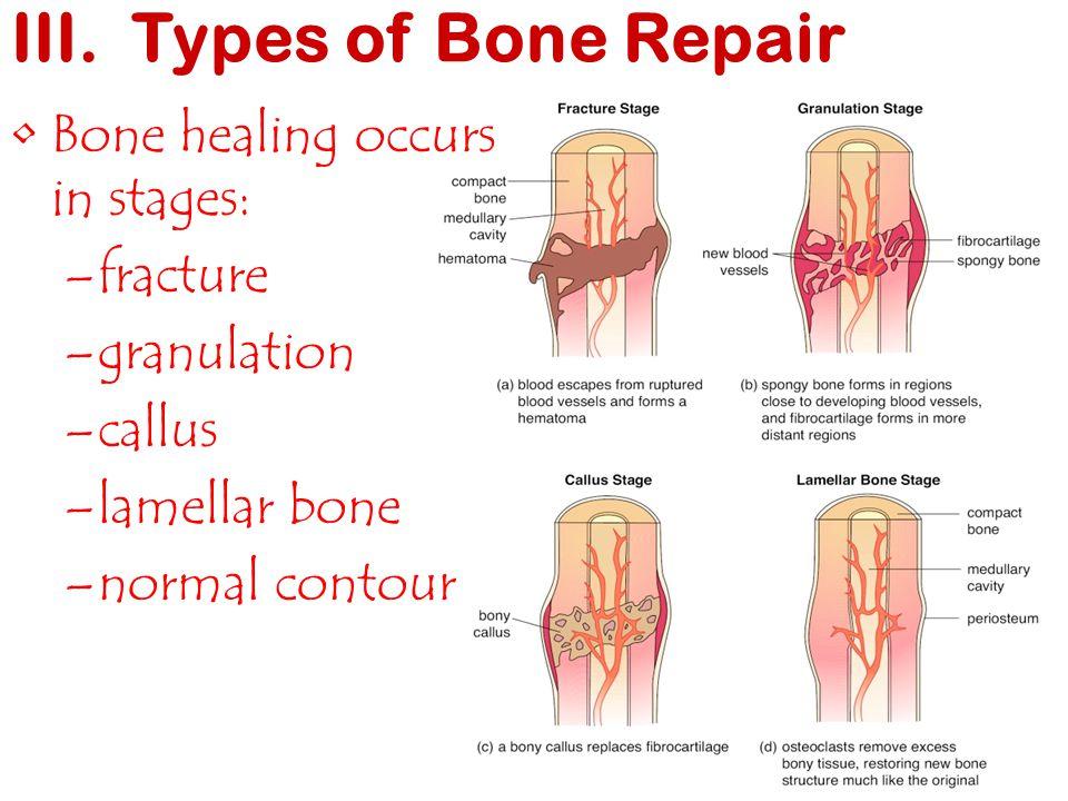 III. Types of Bone Repair