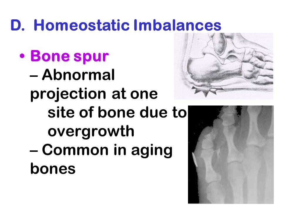 D. Homeostatic Imbalances