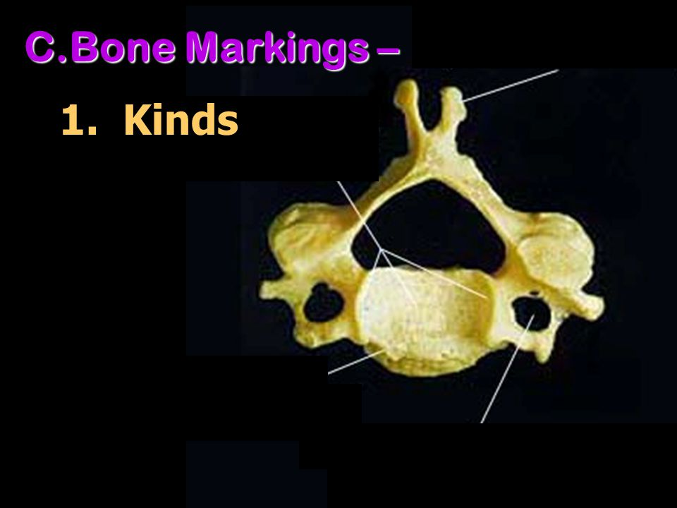 Bone Markings – 1. Kinds There are three basic types of bone markings: