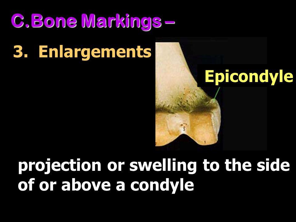 Bone Markings – 3. Enlargements Epicondyle