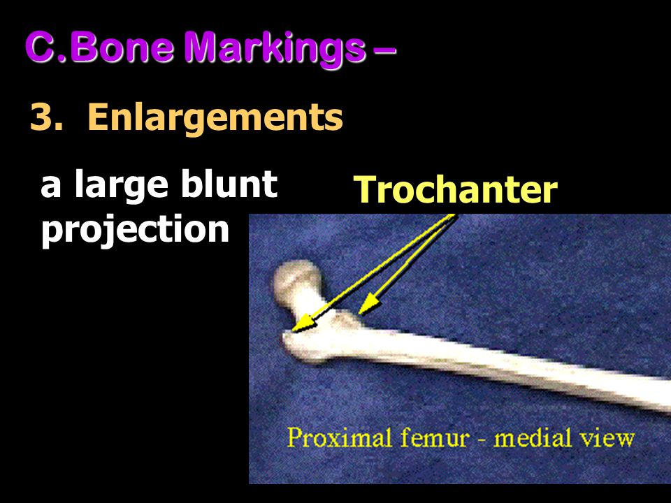Bone Markings – 3. Enlargements a large blunt projection Trochanter