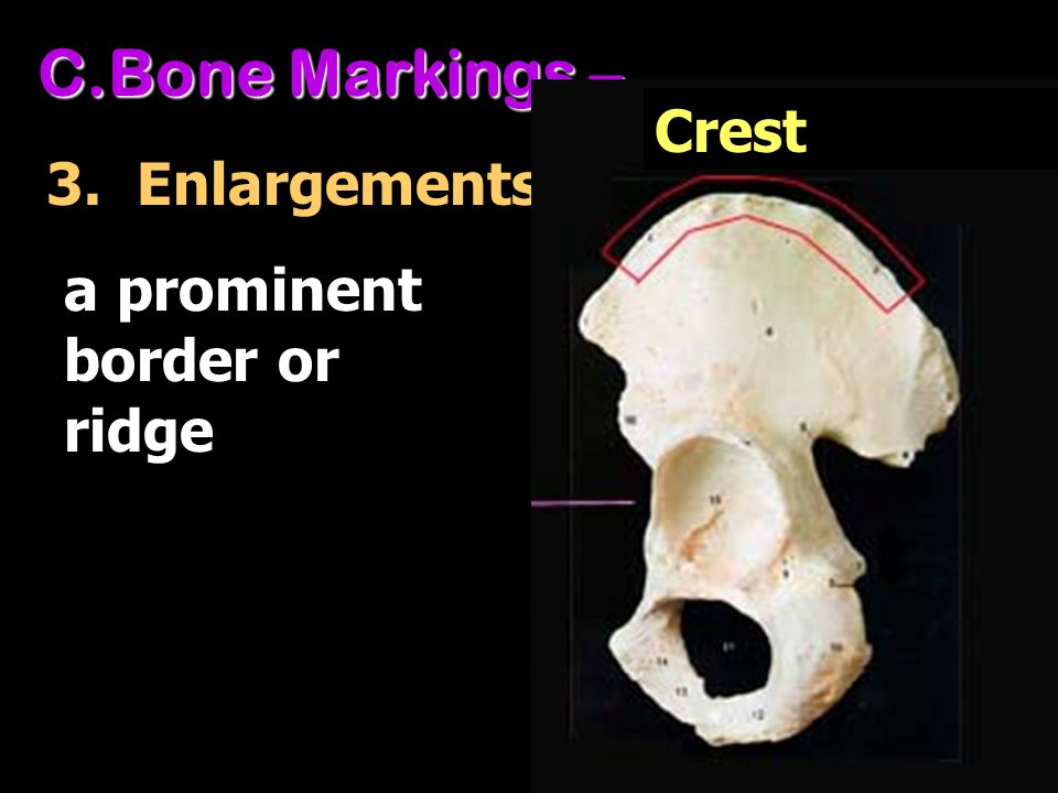 Bone Markings – Crest 3. Enlargements a prominent border or ridge