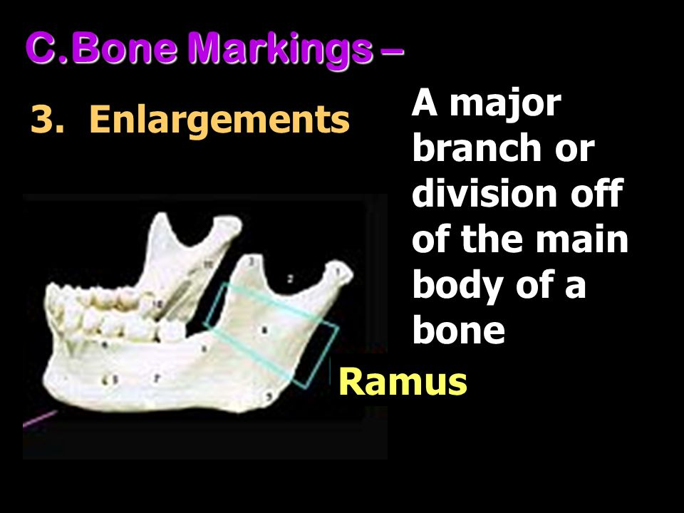 Bone Markings – A major branch or division off of the main body of a bone. 3. Enlargements. There are three basic types of bone markings: