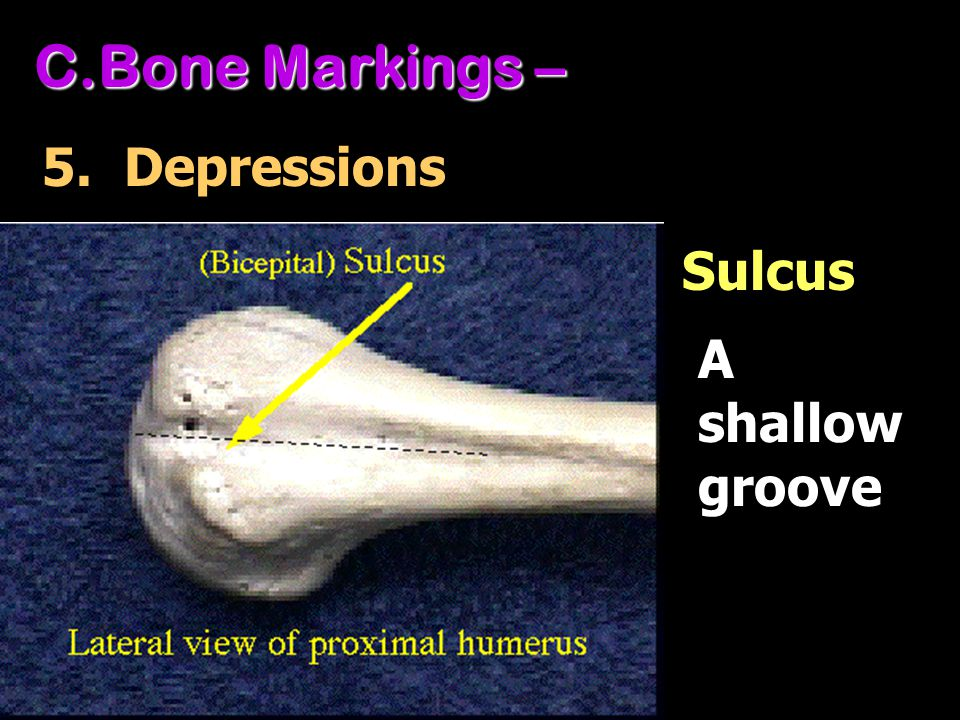 Bone Markings – 5. Depressions Sulcus A shallow groove