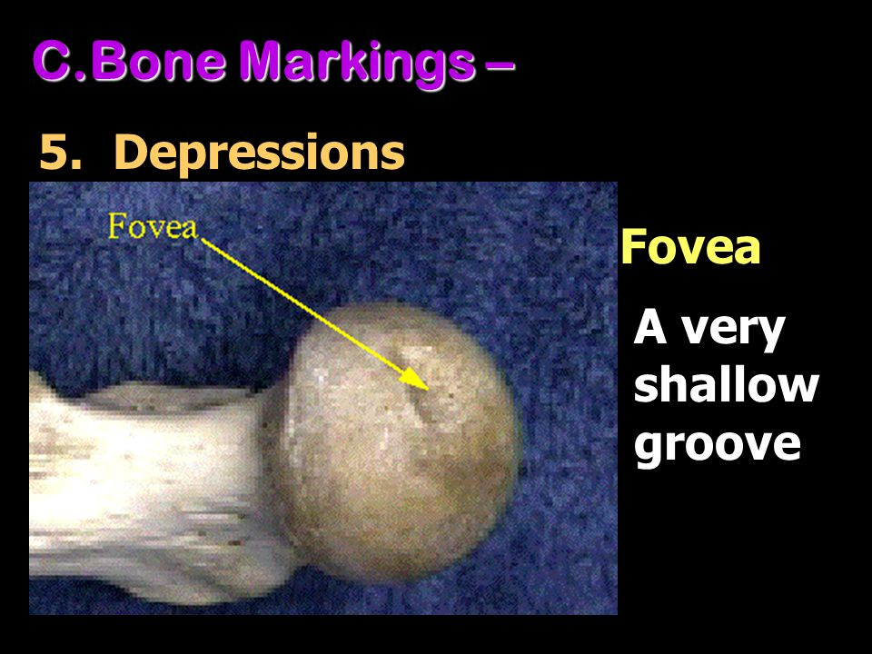 Bone Markings – 5. Depressions Fovea A very shallow groove