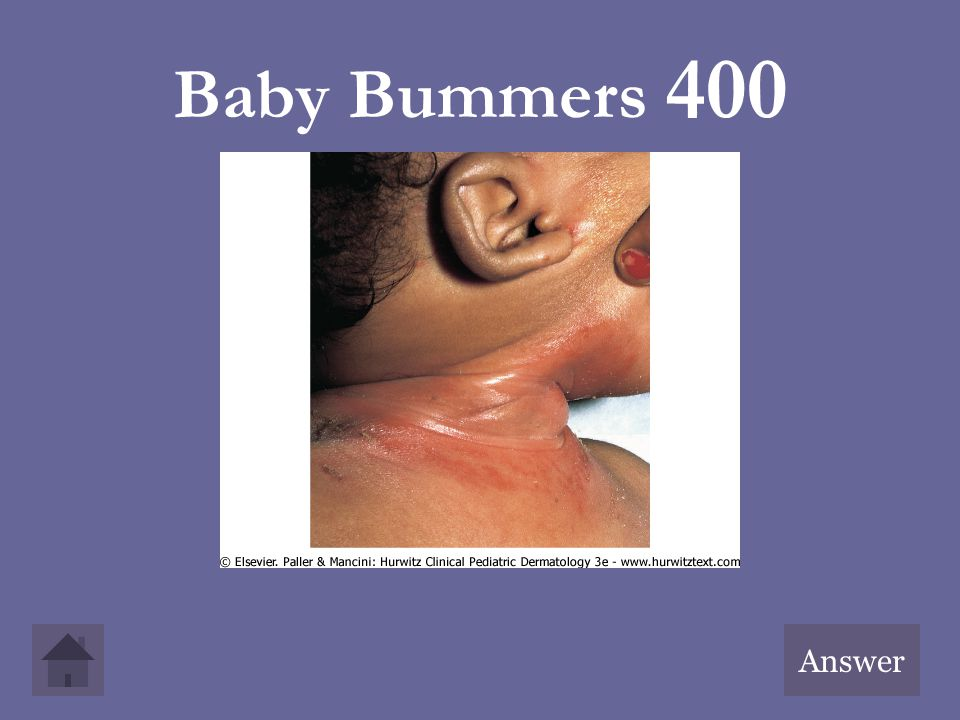 Baby Bummers 400 Answer