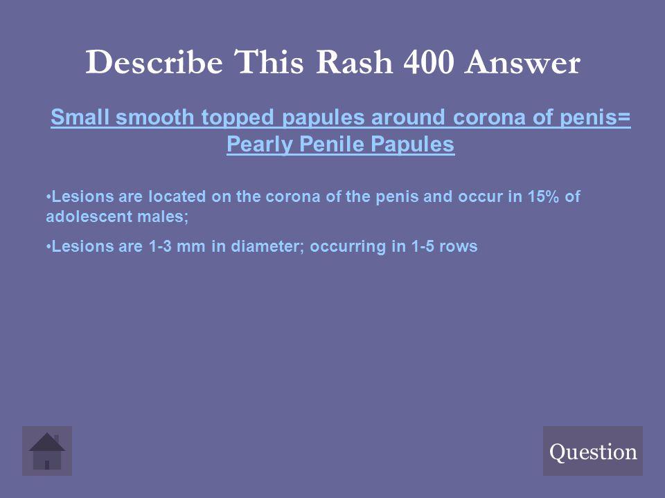 Describe This Rash 400 Answer