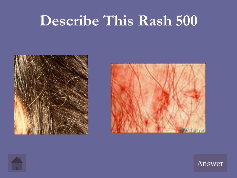Describe This Rash 500 Answer