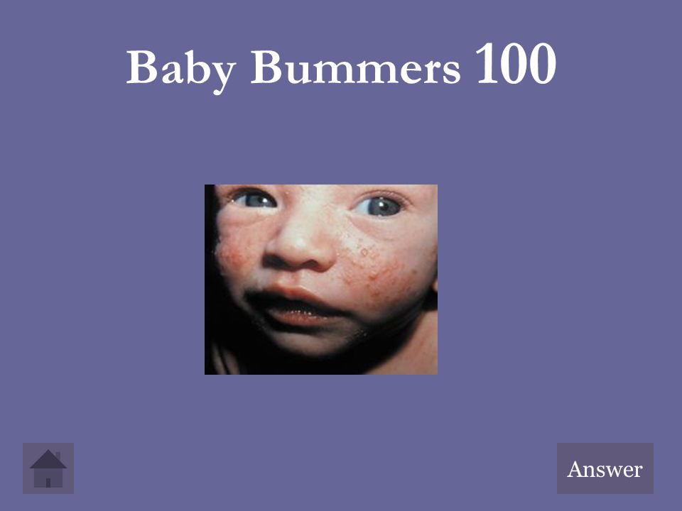 Baby Bummers 100 Answer