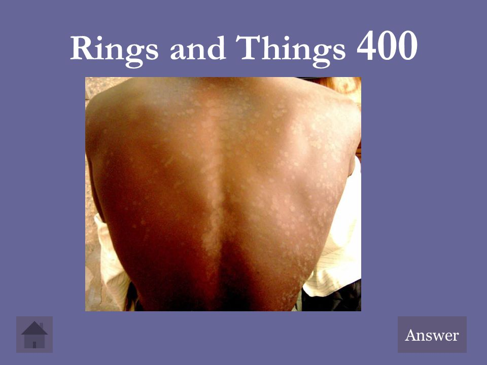 Rings and Things 400 Answer