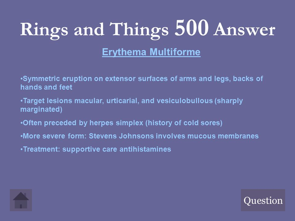 Rings and Things 500 Answer