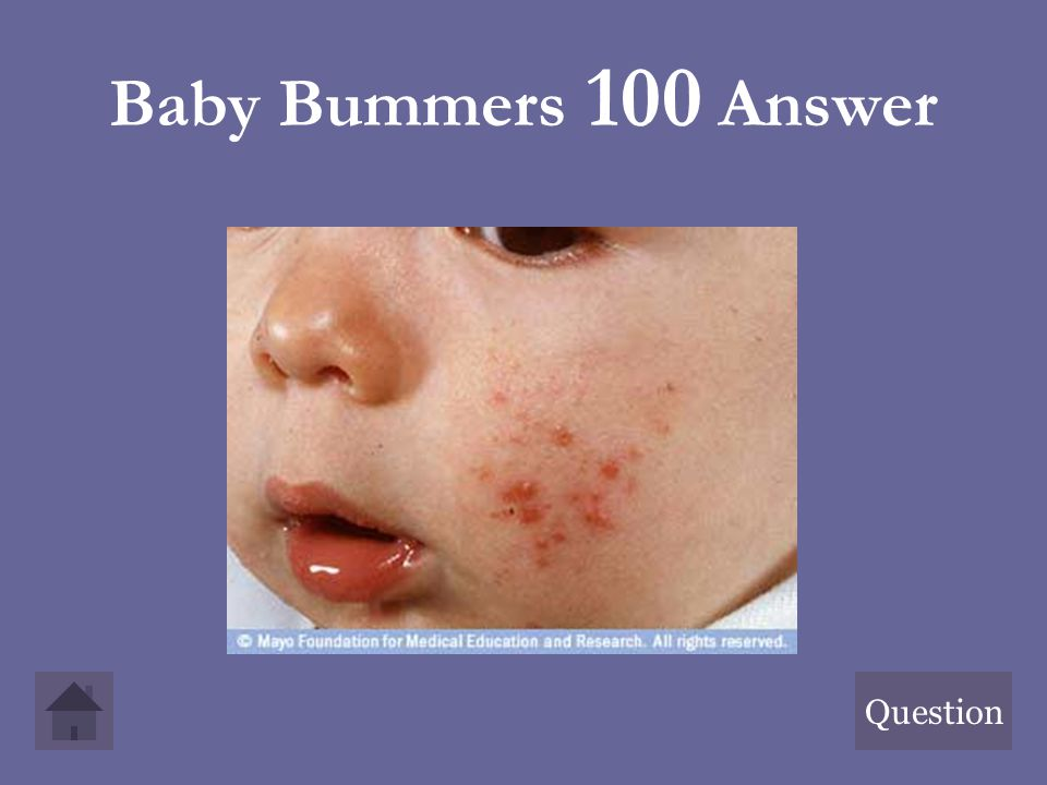 Baby Bummers 100 Answer Question