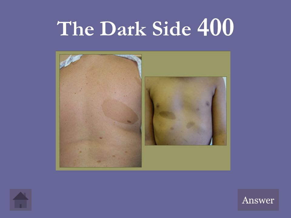 The Dark Side 400 Answer