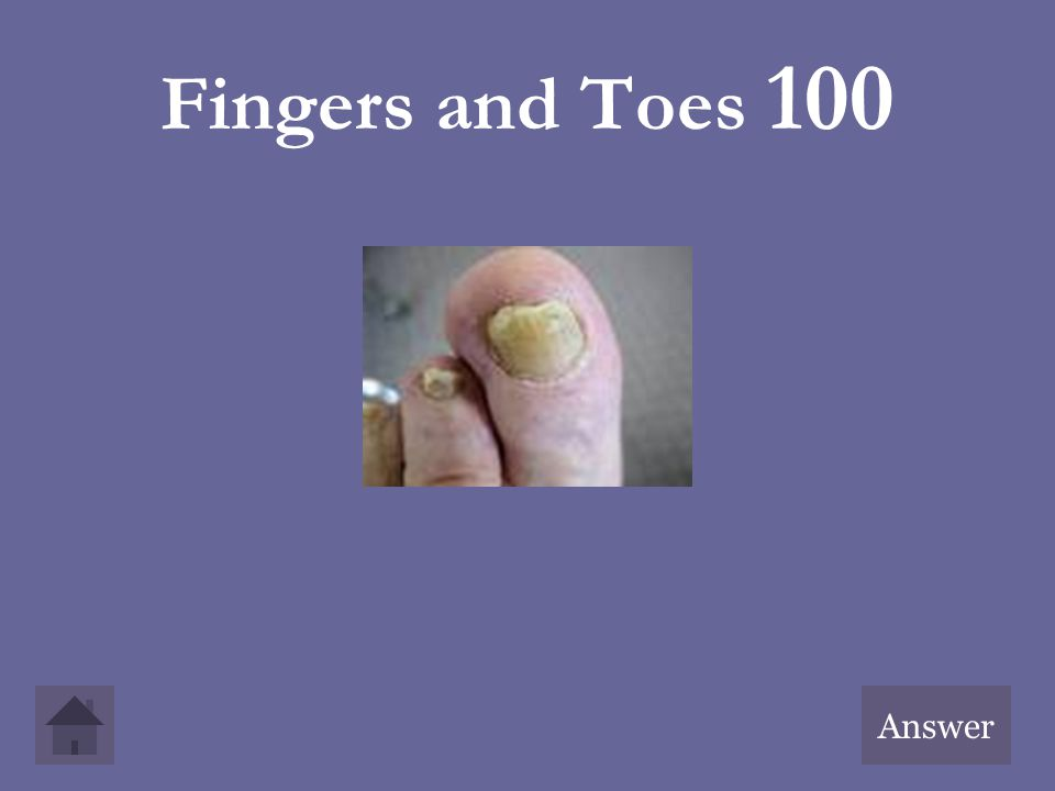 Fingers and Toes 100 Answer