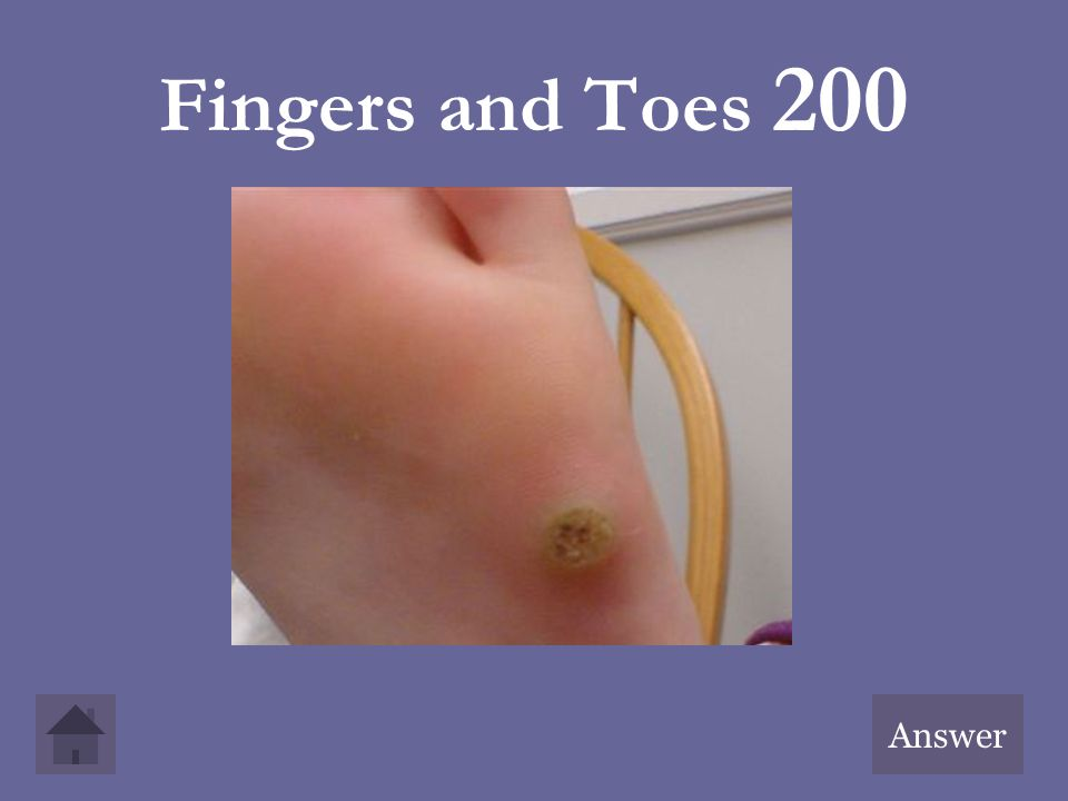 Fingers and Toes 200 Answer