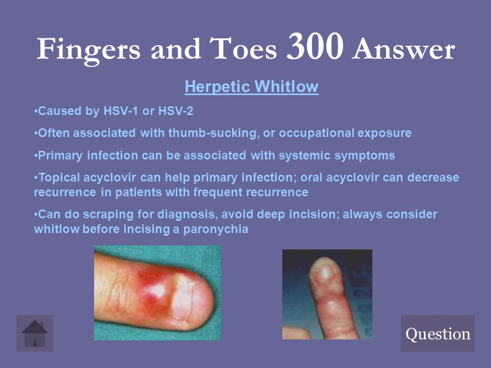 Fingers and Toes 300 Answer