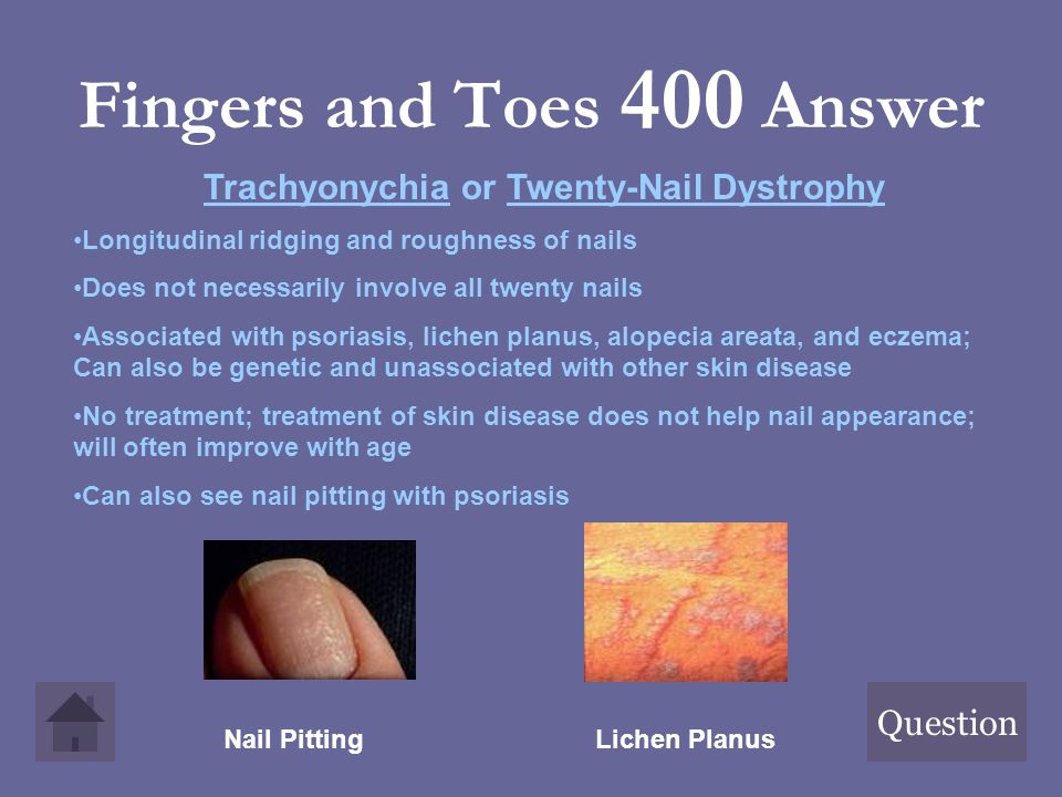 Fingers and Toes 400 Answer