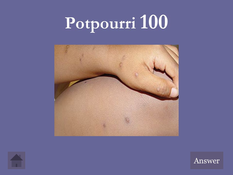 Potpourri 100 Answer