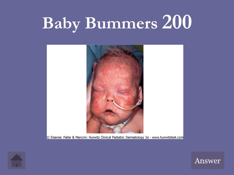 Baby Bummers 200 Answer
