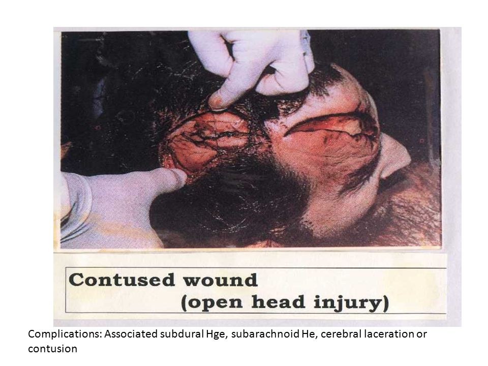 Complications: Associated subdural Hge, subarachnoid He, cerebral laceration or contusion
