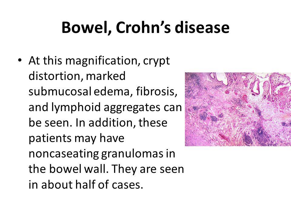 Bowel, Crohn's disease